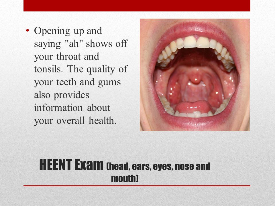 HEENT Exam (head, ears, eyes, nose and mouth)