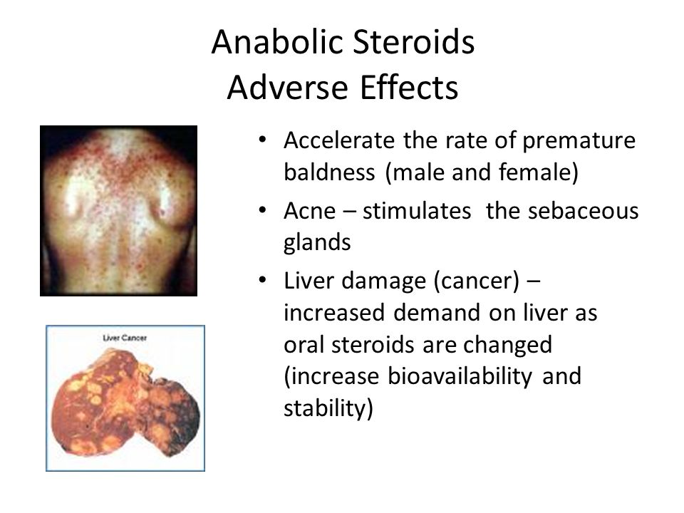 Anabolic Steroids Adverse Effects
