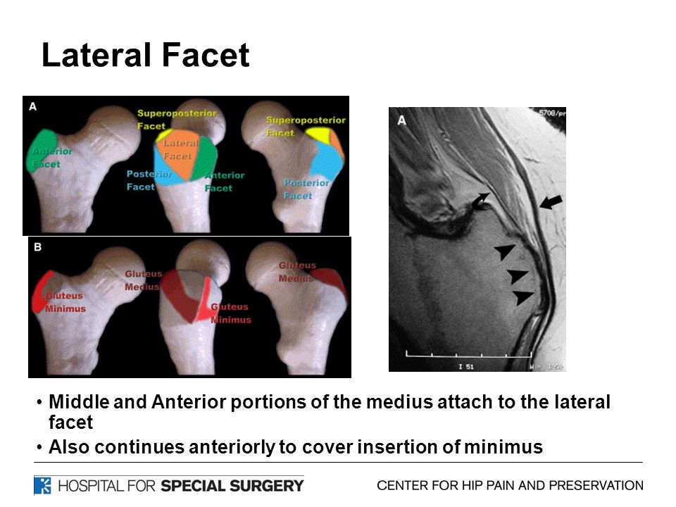 Lateral Facet Lat facet= lat part glut medius(muscular attachment), located at post ½ of GT on coronals.