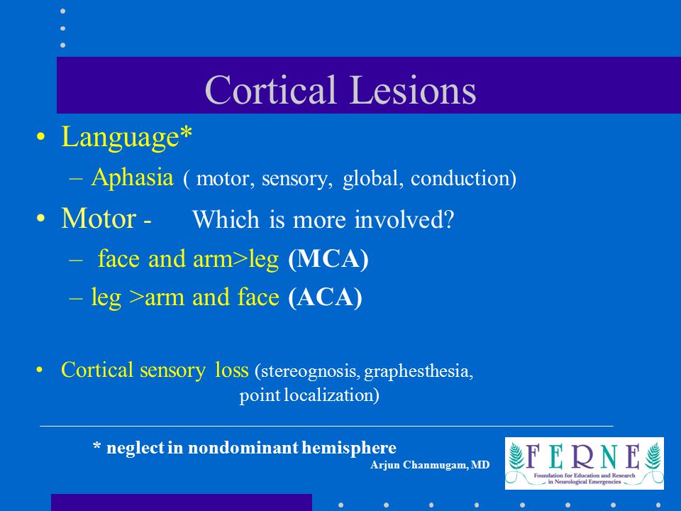 Cortical Lesions Language* Motor - Which is more involved
