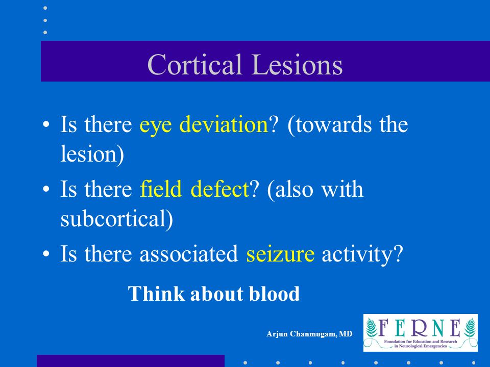 Cortical Lesions Is there eye deviation (towards the lesion)