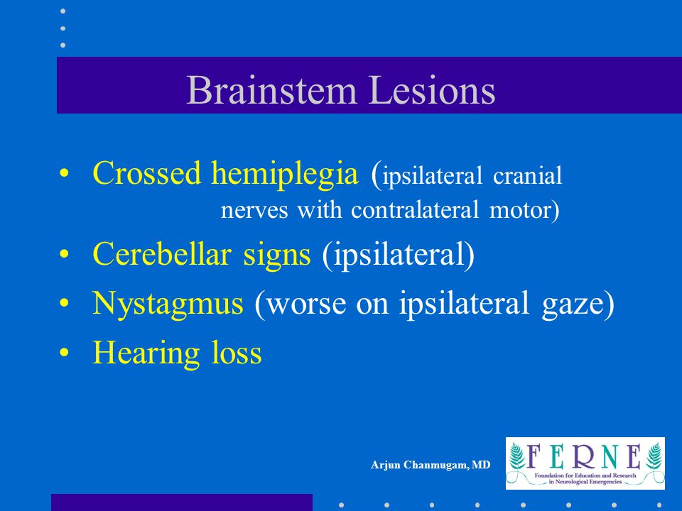 Brainstem Lesions Crossed hemiplegia (ipsilateral cranial nerves with contralateral motor)