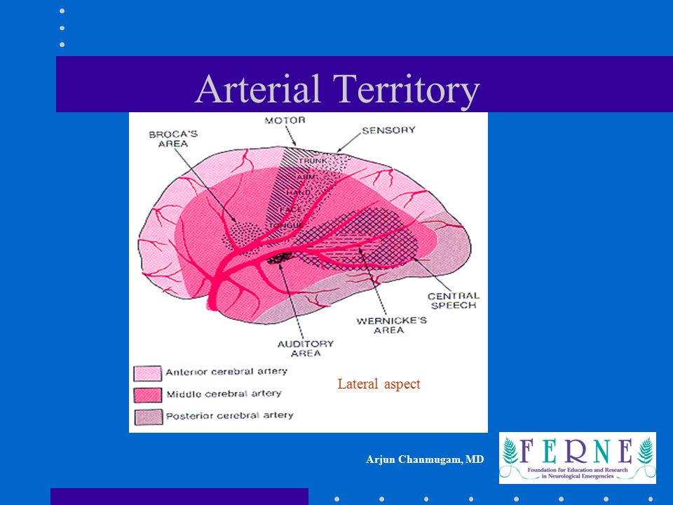 Arterial Territory Lateral aspect
