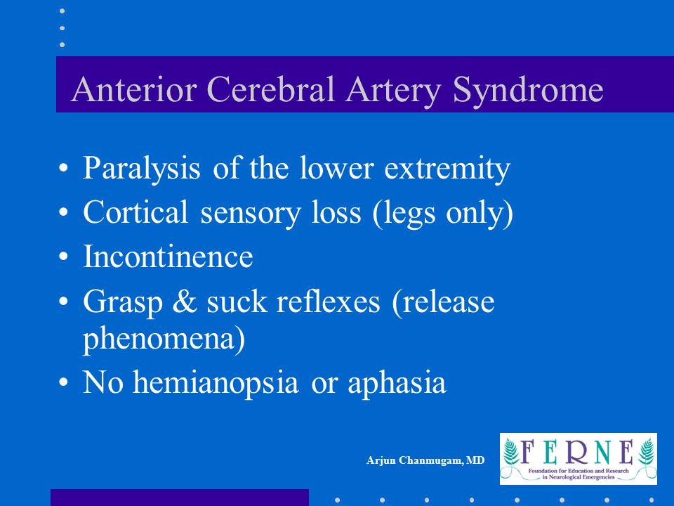 Anterior Cerebral Artery Syndrome