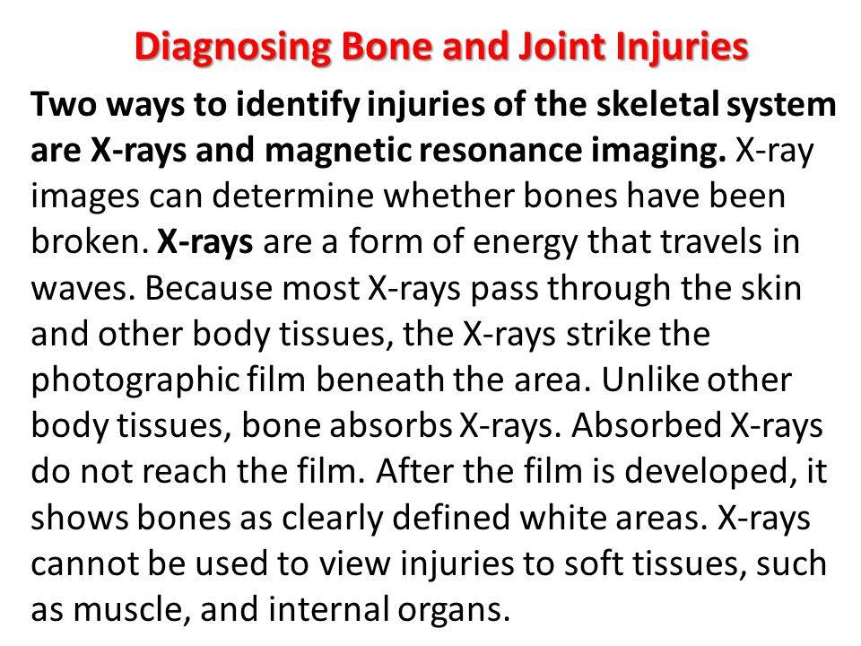 Diagnosing Bone and Joint Injuries