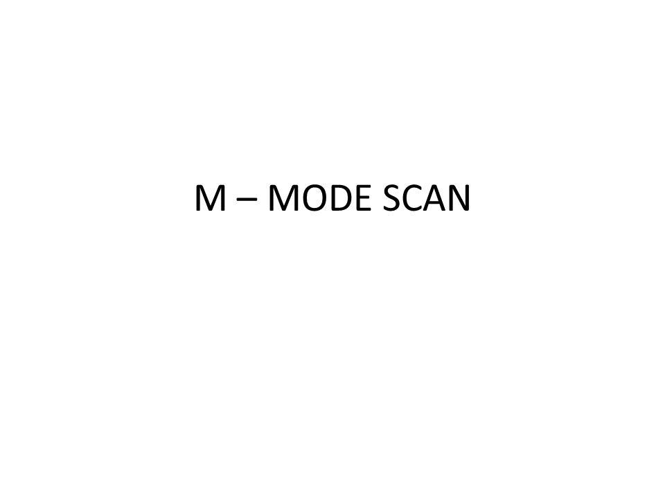 M – MODE SCAN