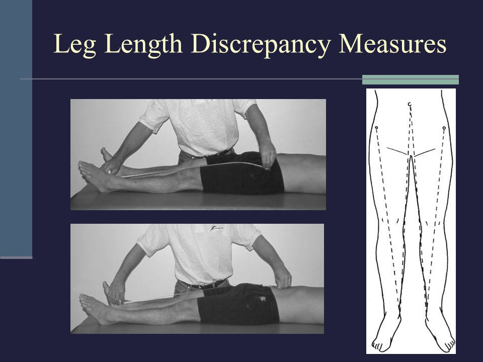Leg Length Discrepancy Measures
