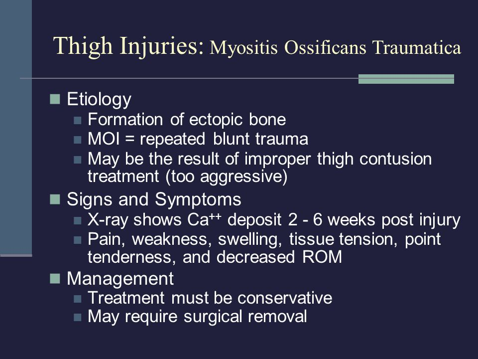 Thigh Injuries: Myositis Ossificans Traumatica