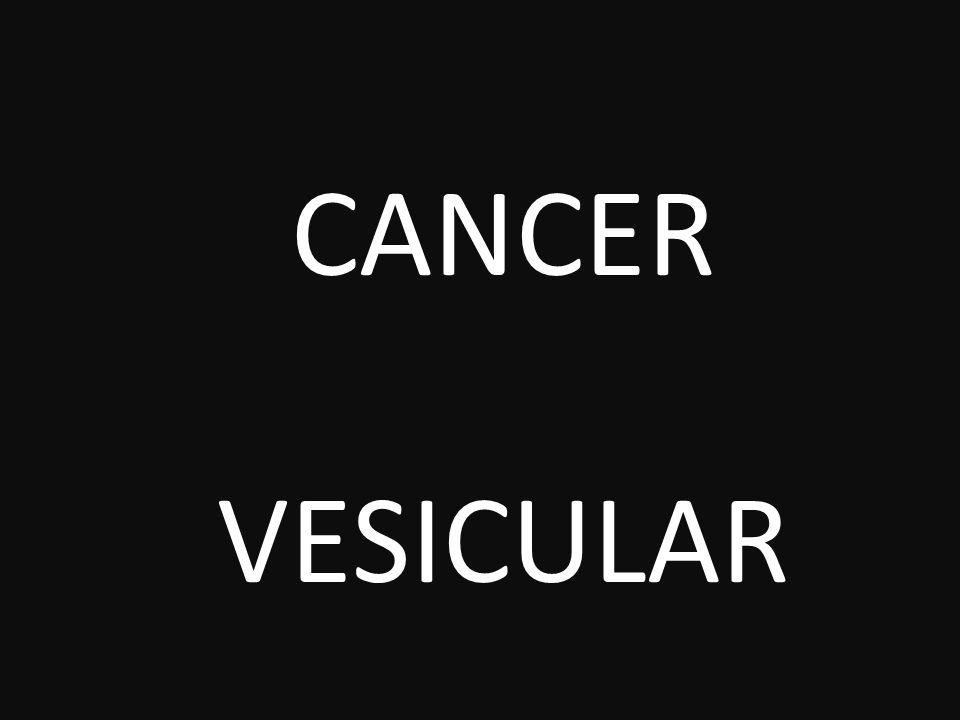 CANCER VESICULAR