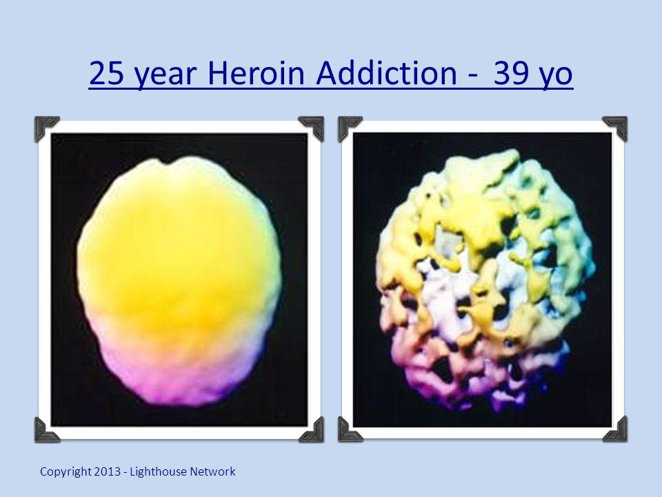 25 year Heroin Addiction - 39 yo