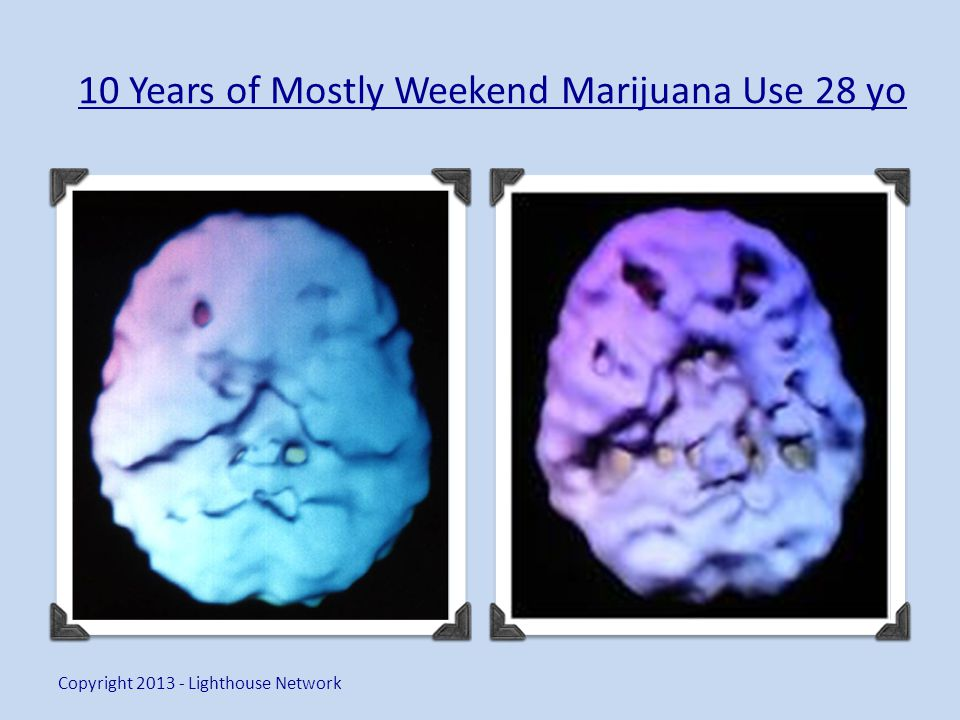 10 Years of Mostly Weekend Marijuana Use 28 yo