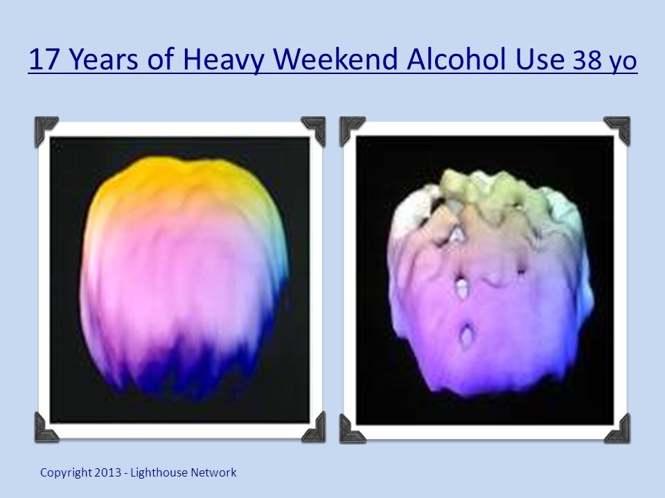 17 Years of Heavy Weekend Alcohol Use 38 yo