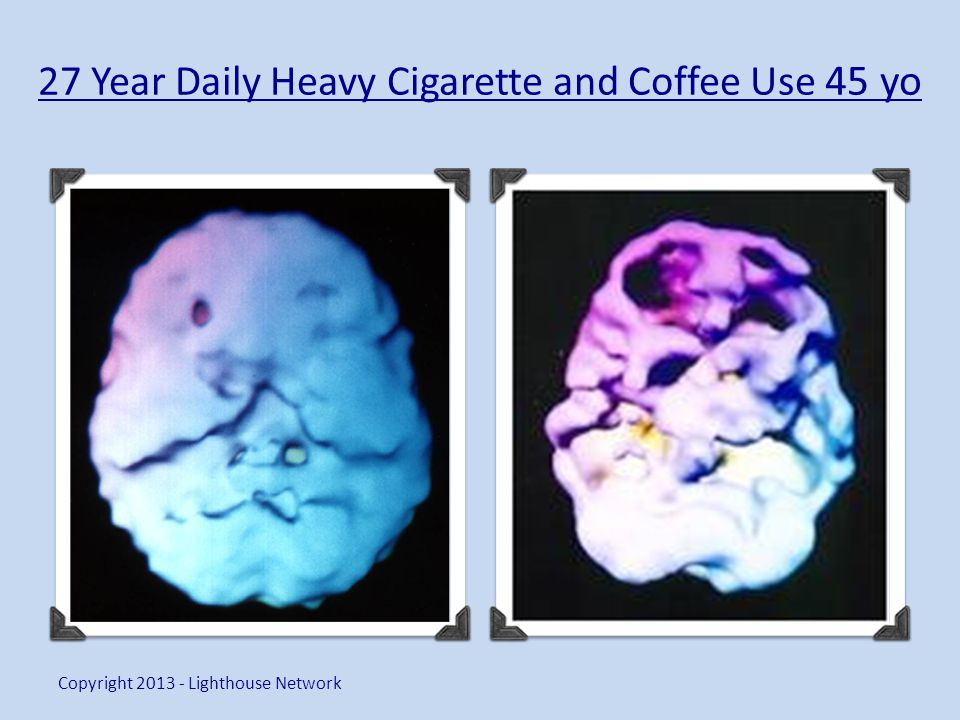 27 Year Daily Heavy Cigarette and Coffee Use 45 yo