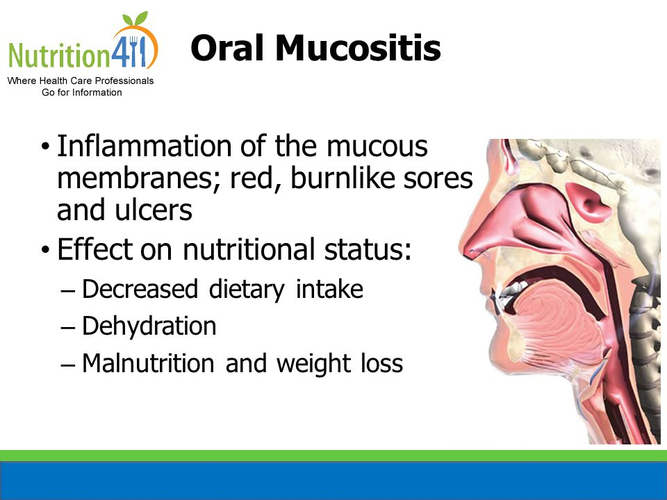 Oral Mucositis Inflammation of the mucous membranes; red, burnlike sores and ulcers. Effect on nutritional status: