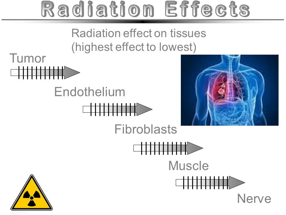Radiation Effects Tumor Endothelium Fibroblasts Muscle Nerve