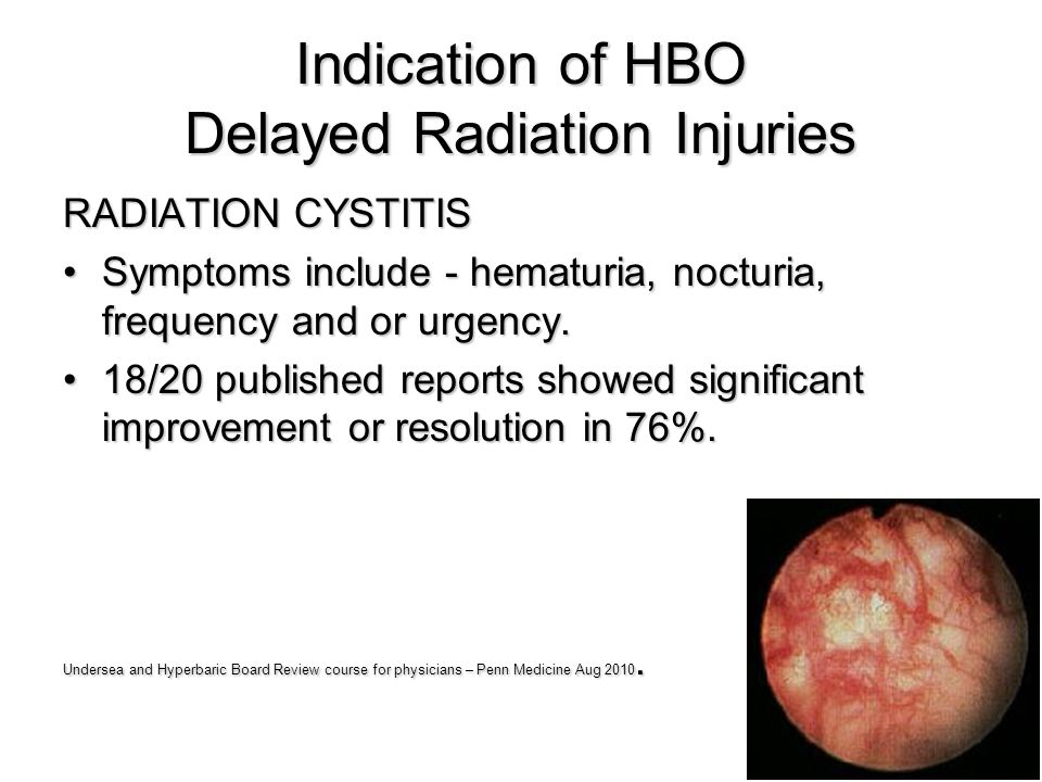 Indication of HBO Delayed Radiation Injuries