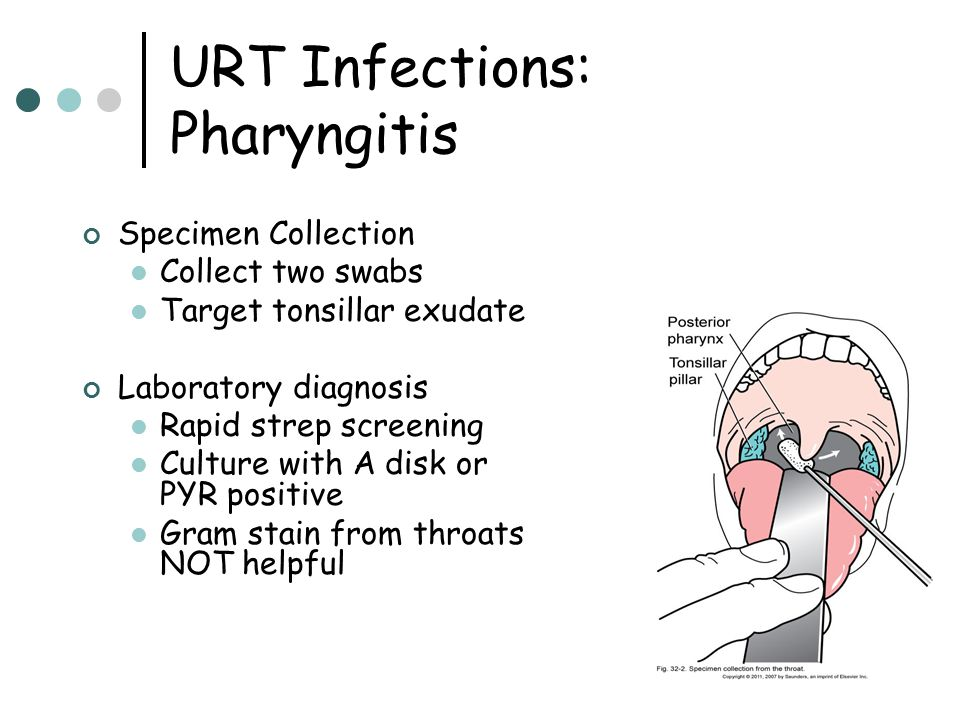 URT Infections: Pharyngitis