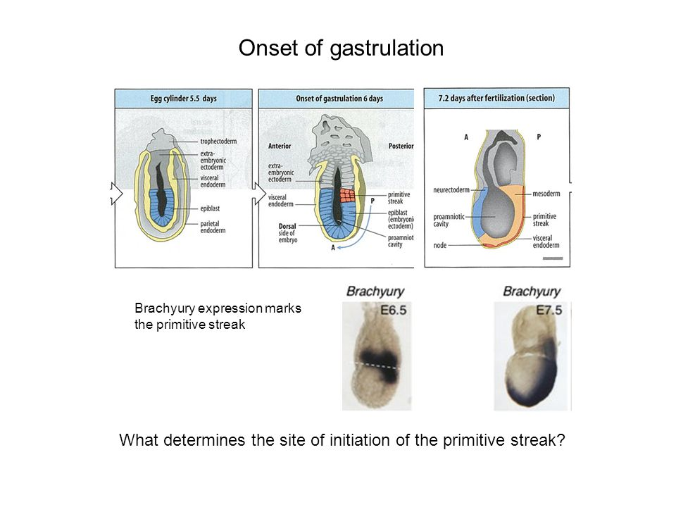 Onset of gastrulation Brachyury expression marks. the primitive streak.