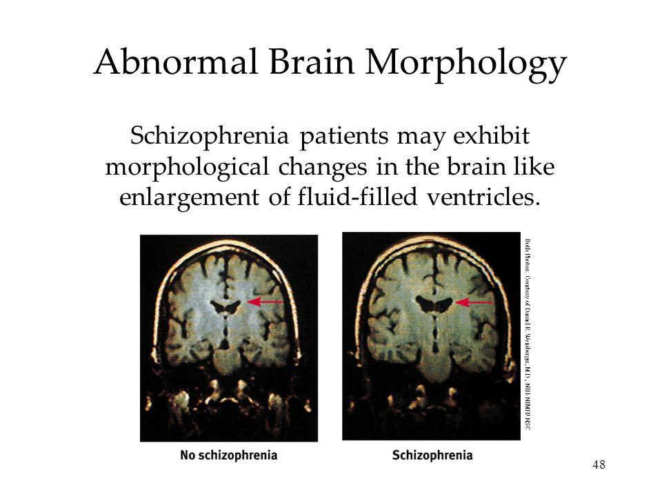 Abnormal Brain Morphology