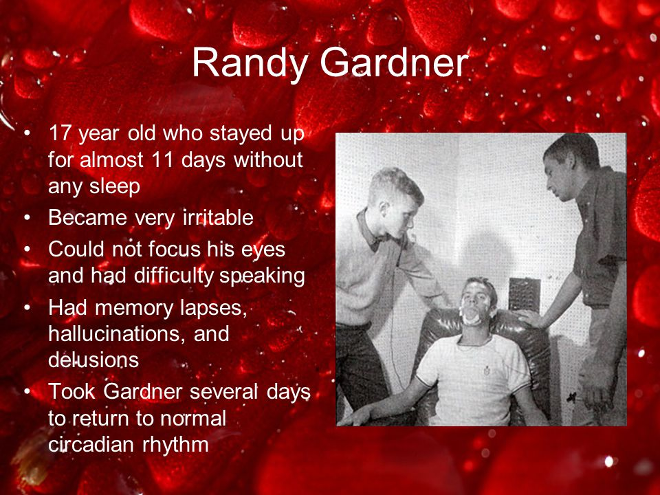 Randy Gardner 17 year old who stayed up for almost 11 days without any sleep. Became very irritable.