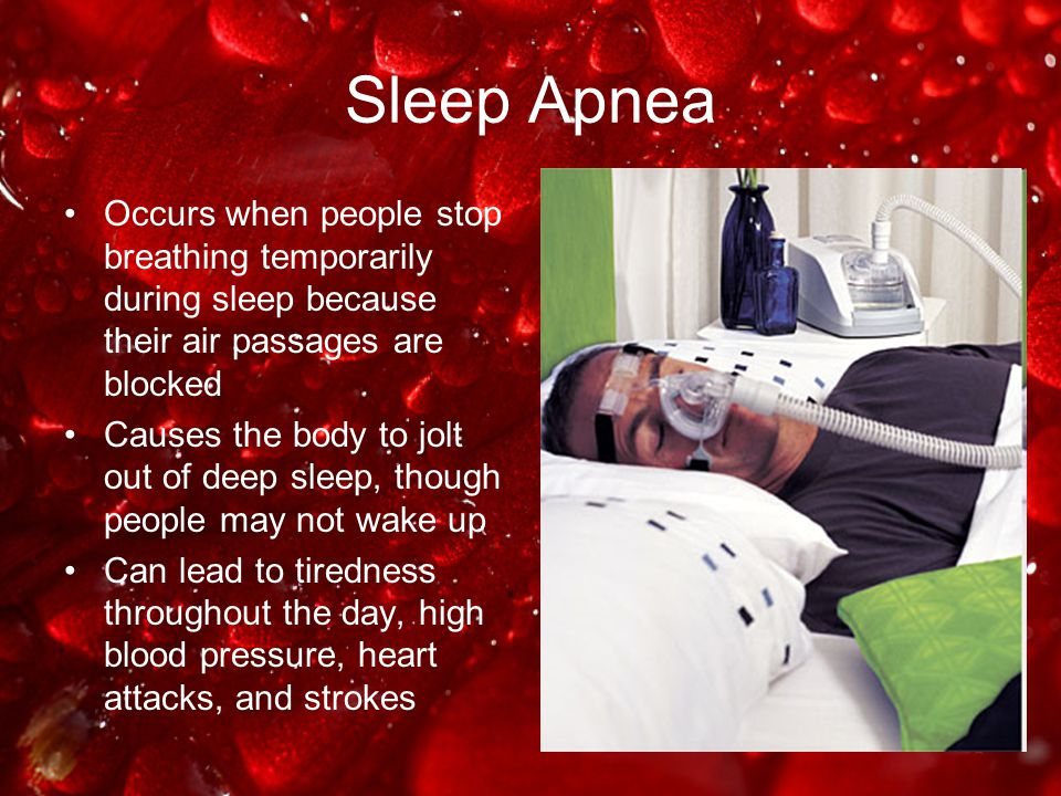 Sleep Apnea Occurs when people stop breathing temporarily during sleep because their air passages are blocked.