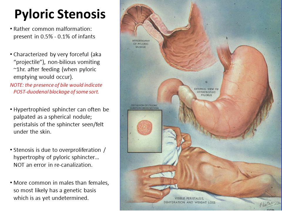 Pyloric Stenosis Rather common malformation: present in 0.5% - 0.1% of infants.