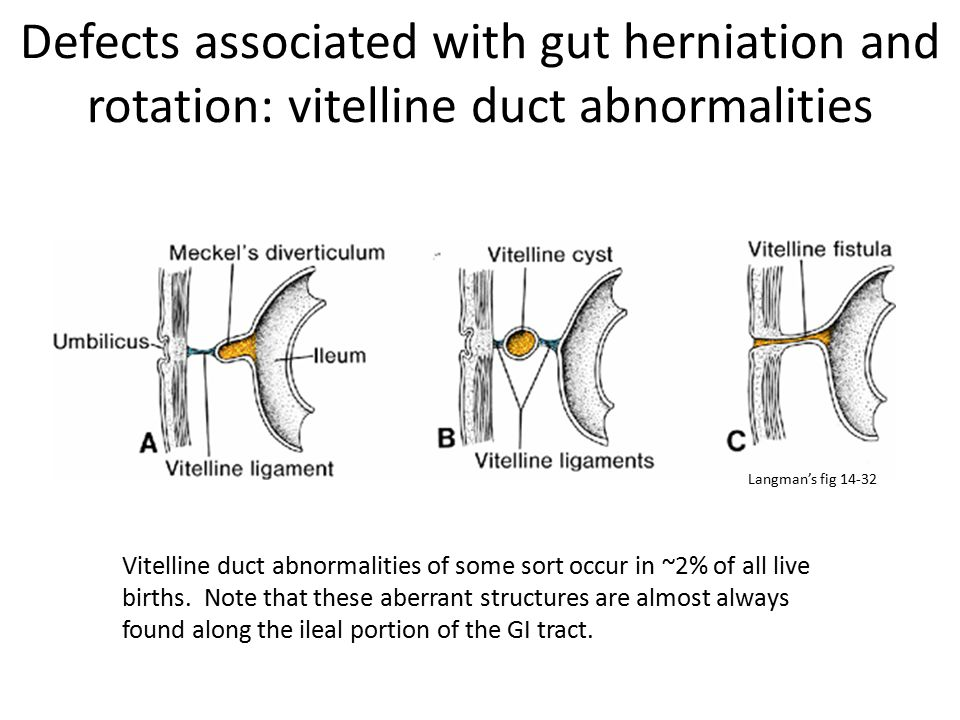 Defects associated with gut herniation and rotation: vitelline duct abnormalities