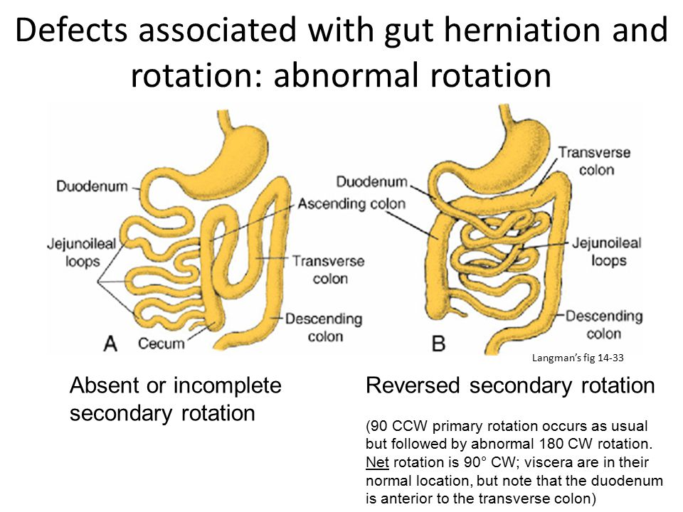 Defects associated with gut herniation and rotation: abnormal rotation