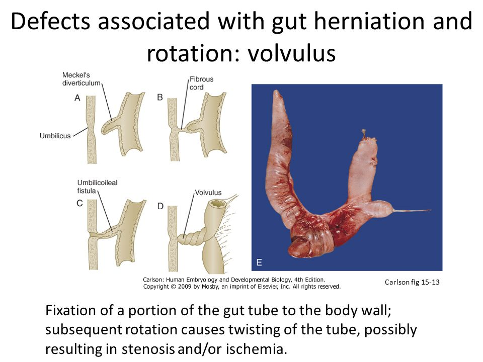 Defects associated with gut herniation and rotation: volvulus