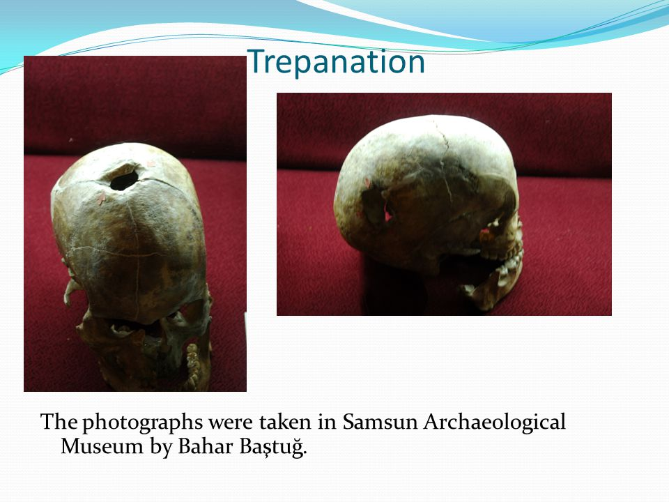 Trepanation The photographs were taken in Samsun Archaeological Museum by Bahar Baştuğ.