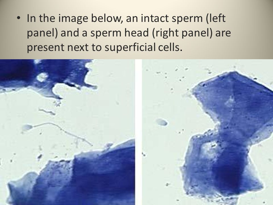 In the image below, an intact sperm (left panel) and a sperm head (right panel) are present next to superficial cells.