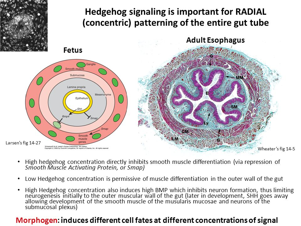Hedgehog signaling is important for RADIAL (concentric) patterning of the entire gut tube