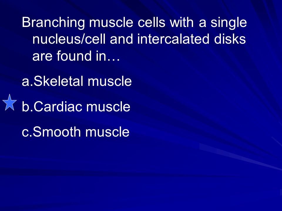 Branching muscle cells with a single nucleus/cell and intercalated disks are found in…