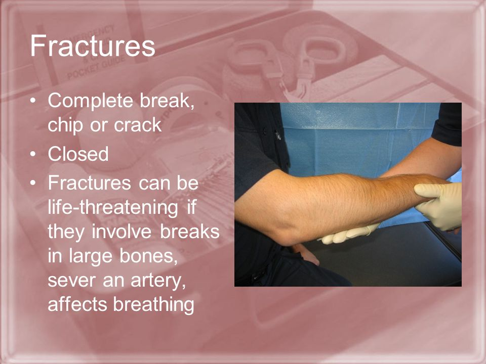 Fractures Complete break, chip or crack Closed