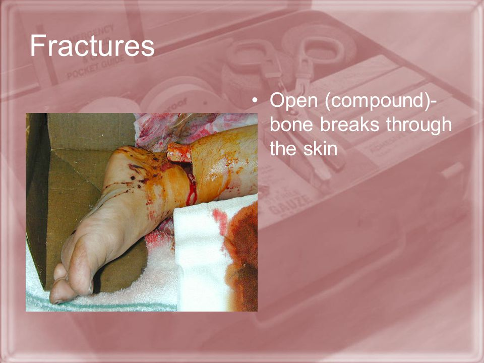 Fractures Open (compound)-bone breaks through the skin