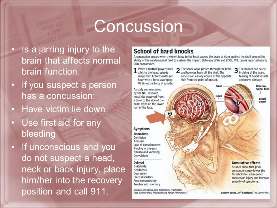 Concussion Is a jarring injury to the brain that affects normal brain function. If you suspect a person has a concussion: