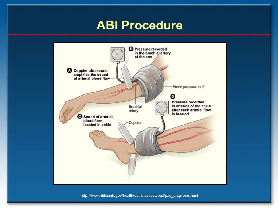 ABI Procedure http://www.nhlbi.nih.gov/health/dci/Diseases/pad/pad_diagnosis.html
