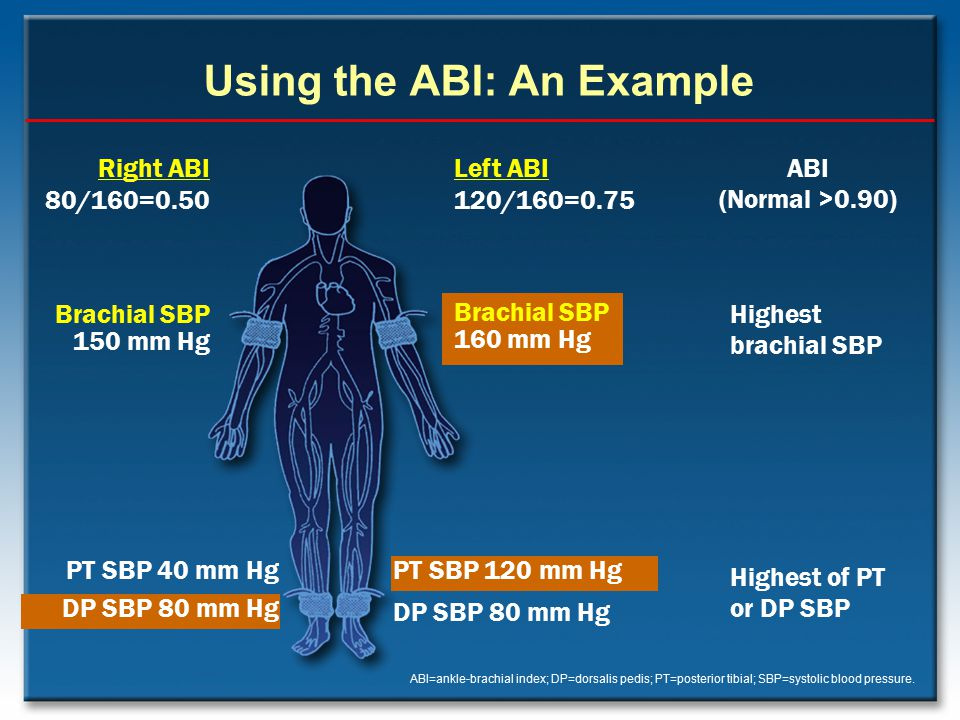 Using the ABI: An Example
