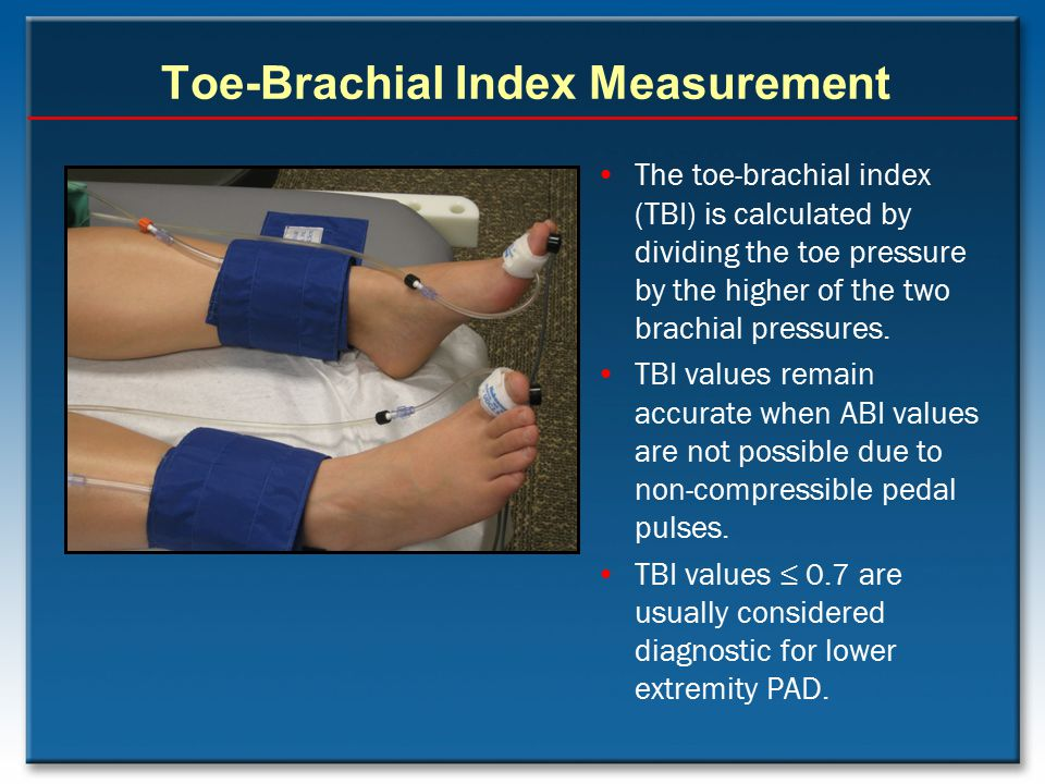 Toe-Brachial Index Measurement