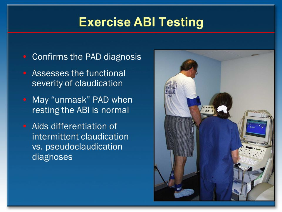 Exercise ABI Testing Confirms the PAD diagnosis