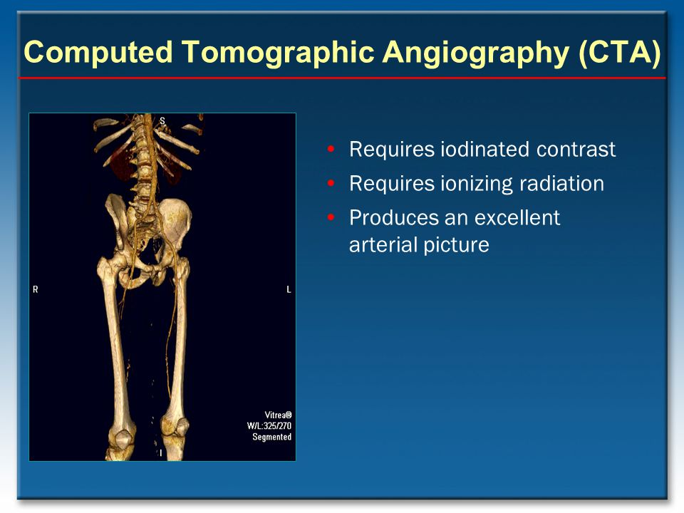 Computed Tomographic Angiography (CTA)
