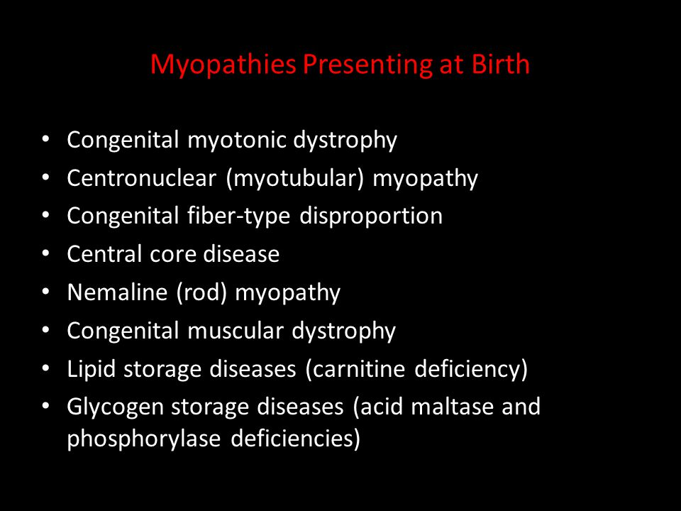 Myopathies Presenting at Birth