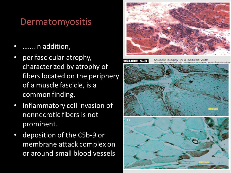 Dermatomyositis …….In addition,