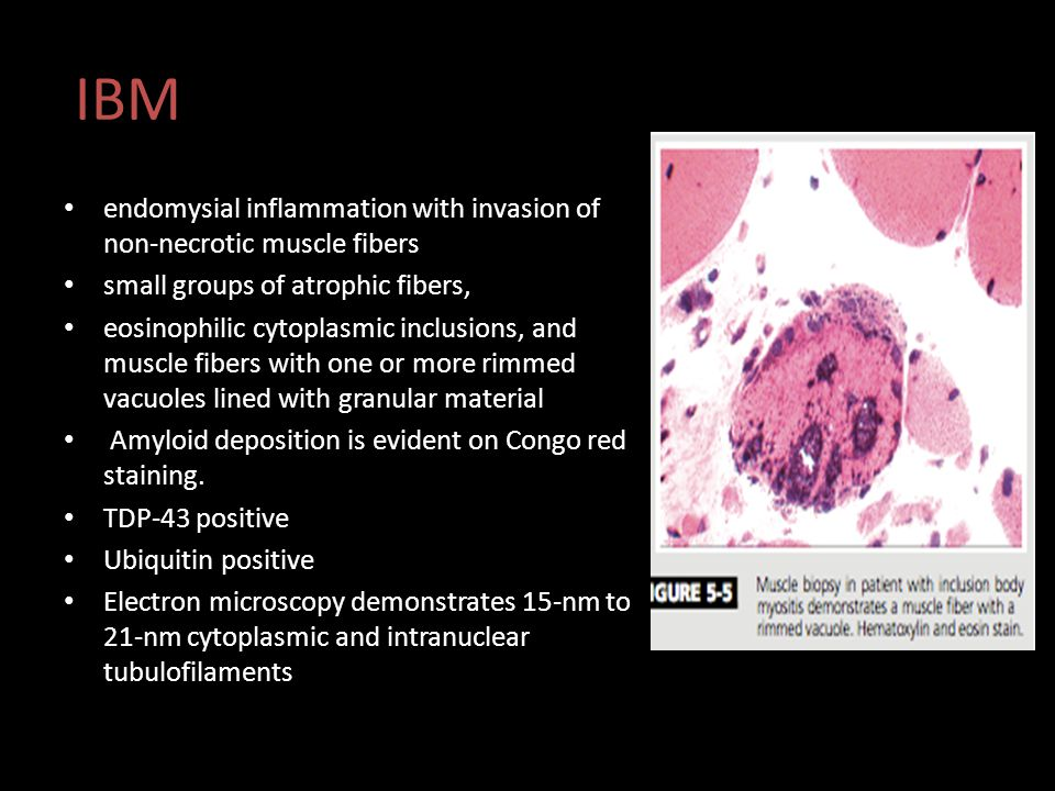 IBM endomysial inflammation with invasion of non-necrotic muscle fibers. small groups of atrophic fibers,
