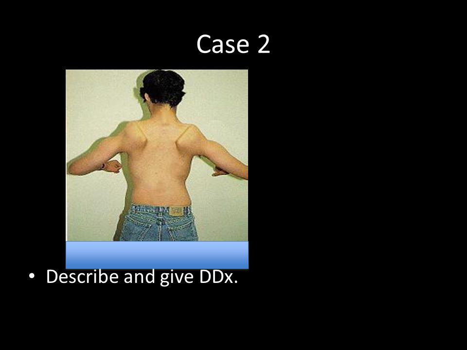Case 2 Describe and give DDx.