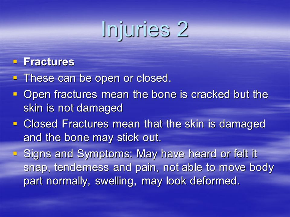 Injuries 2 Fractures These can be open or closed.