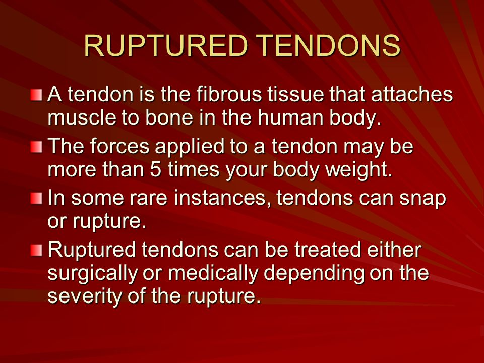 RUPTURED TENDONS A tendon is the fibrous tissue that attaches muscle to bone in the human body.