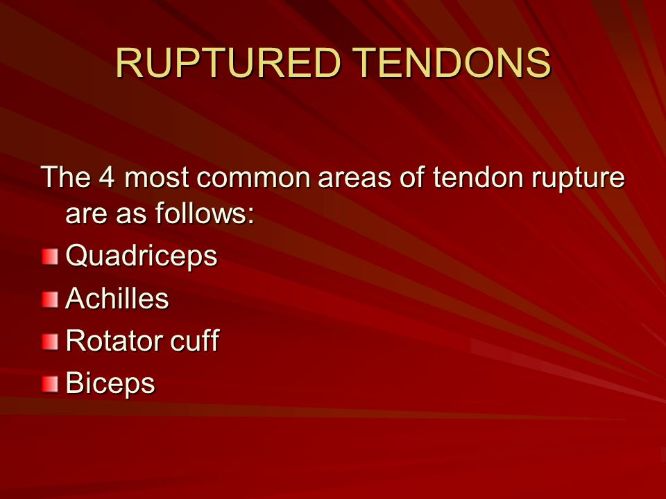 RUPTURED TENDONS The 4 most common areas of tendon rupture are as follows: Quadriceps. Achilles. Rotator cuff.
