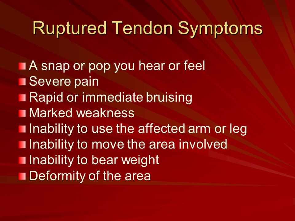 Ruptured Tendon Symptoms