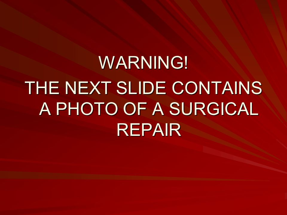 THE NEXT SLIDE CONTAINS A PHOTO OF A SURGICAL REPAIR